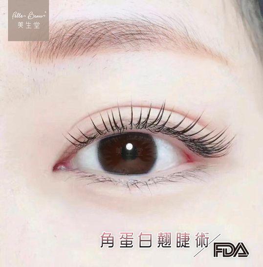 角蛋白翹睫術