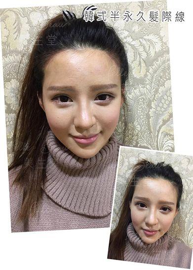 韓式半永久髮際線