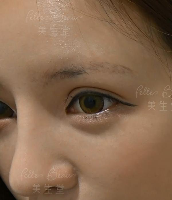 模特兒Leanna 劉沁兩個月洗左兩次眉後,舊眉顏色洗得7788,變得非常乾淨,而家呢個狀態就可以做新眉喇!