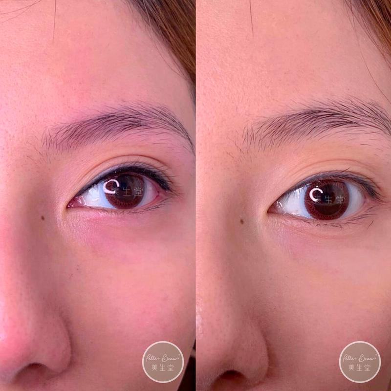 舊眼線求助個案- 感激客人的照片分享